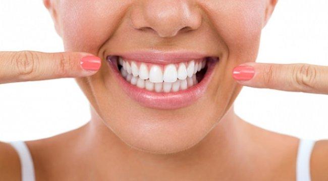 Evde diş beyazlatma yöntemleri! Sadece üç dakikada bembeyaz dişler